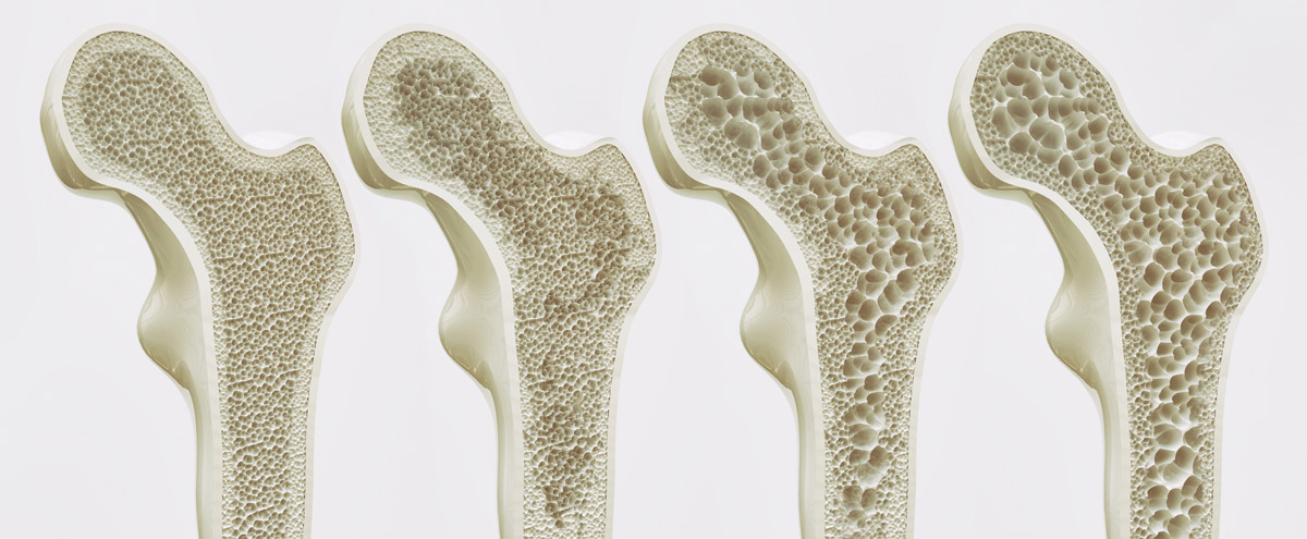 The four stages of osteoporosis